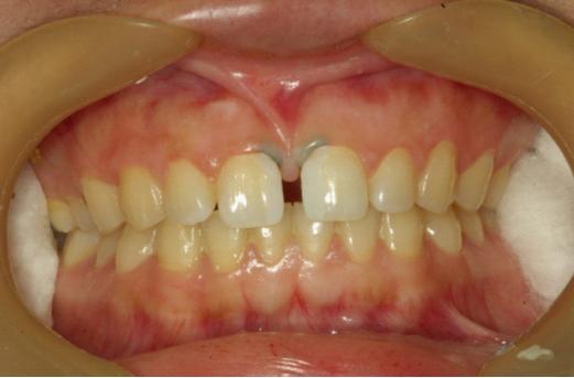 最终,我们通过沟通,选择了树脂贴面,并且,做到对她的牙齿做到零创伤.