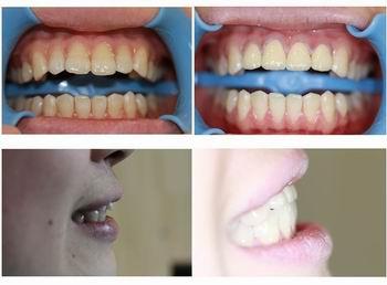 儿童牙齿矫正需要注意什么